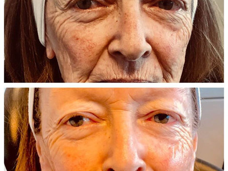 Skin Regeneration System