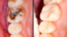 white filling dentist larbert falkirk stirlingshire
