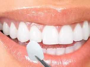 NHS dentist falkirk larbert veneer
