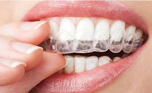 dentist larbert braces white