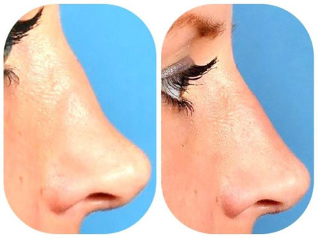 The Non Surgical Nose Job - a 15 Minute Wonder