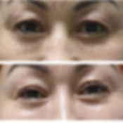 fibroblast before and after