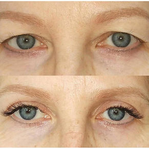 fibroblast beforeand after