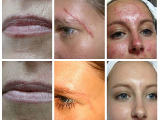 Look Youthful and Beautiful with JetPeel
