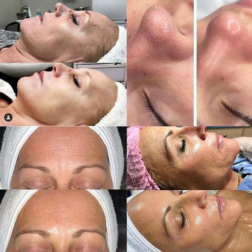 JetPeel Wrinkle/Acne/HairLoss/Skin Treatment