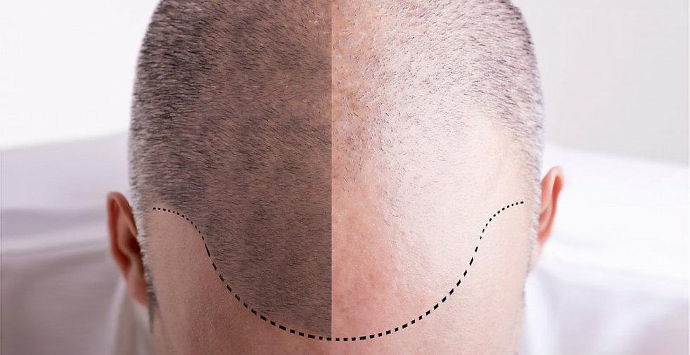 tricopigmentation-1.jpg