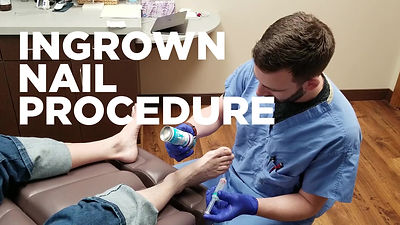 Ingrown Toenail Procedure