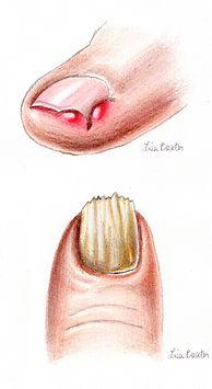 Toenail Care Toe Ingrown