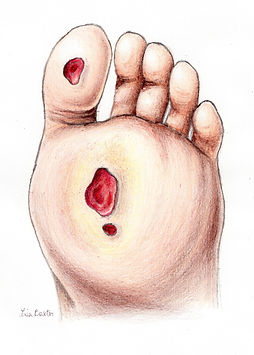Diabetic Foot Care Wound Ulcer Diabetes