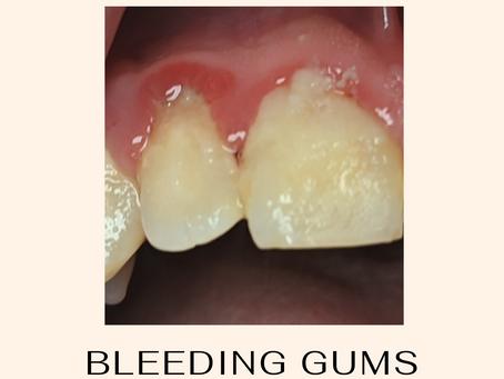 Bleeding gums and Dental Hygiene