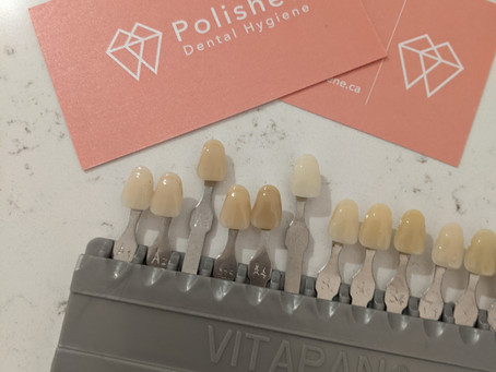 In-office professional dental whitening
