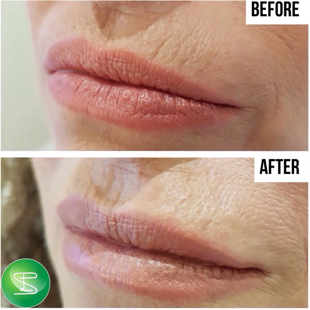 Upper-Lip
