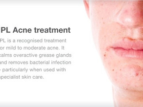 Does IPL Acne Treatment work?