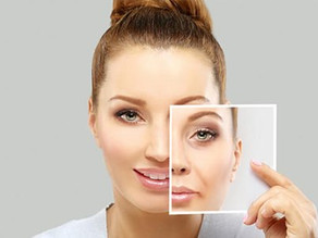 7 common anti-aging treatments