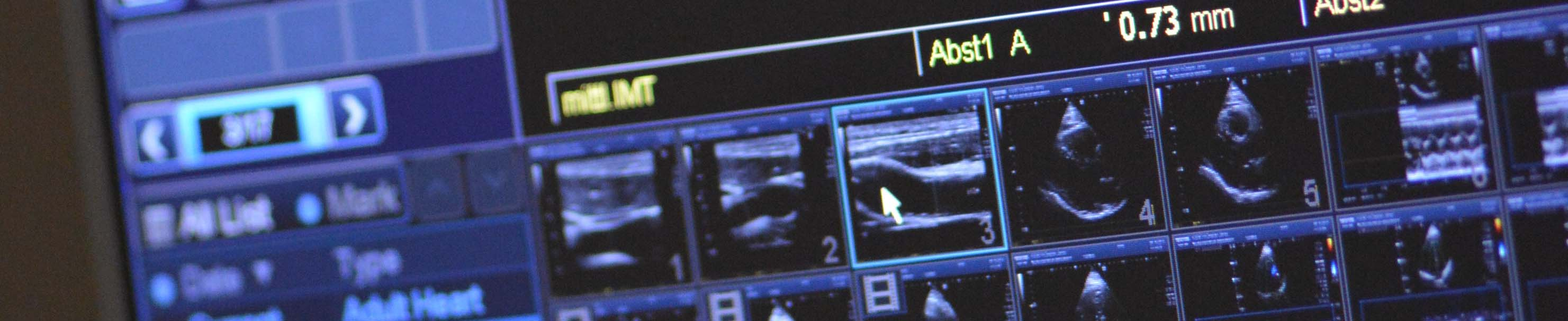 kardiologie-slideshow4.jpg