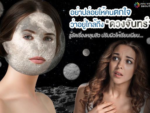 """อย่าปล่อยให้คนตกใจ ว่าอยู่ใกล้ถึง """"ดวงจันทร์"""" รู้ชัดเรื่องหลุมสิว ปรับผิวให้เรียบเนียบ"""
