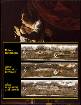 """There are multiple tears and losses in the original canvas tacking margins of Artemisia Gentileschi's """"Judith and Her Maidservant with the Head of Holofernes."""" In the past, they were protected with an overlay of polyester sailcloth canvas infused with a conservation-grade adhesive — much like a 'bandaid'. This time around, we are removing the 'bandaids' and reweaving each of the tears by adhering individual canvas threads back to each other. Where the threads do not meet, we are adding additional threads to serve as replacements and 'bridges'. In larger areas of complete canvas loss, we are inserting new canvas pieces custom cut to shape and attaching them in the same manner. While our new threads and canvas are linen like the original, they are lighter in color — which will aid future scholars in easily identifying our repairs. Our efforts will stabilize the original canvas for future generations to study and appreciate. #BehindtheScenesDIA #ArtemisiaDIA #womenartists #artconservation"""