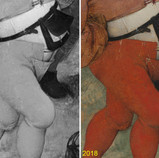 """As we mentioned yesterday, the well-known conservator William """"Billy"""" Suhr treated """"The Wedding Dance"""" in 1942. One of the more interesting aspects of his treatment was the discovery of codpieces that had been painted over by a later hand. A codpiece is a triangular flap attached to the front of a man's hose or breeches. While they initially served as pockets, they ultimately became a display of masculinity and wealth. After falling out of fashion, codpieces were frequently camouflaged or removed from art because they were seen as lewd. Thanks to Suhr uncovering the original paint, we can now view Bruegel's codpieces, allowing us to appreciate the fashion of the time. #WherestheBruegel #PieterBruegelTheElder #artconservation"""