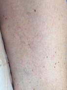 Microsclerotherapy for telangiectasia at Dr Kim Booysen