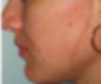 Chemical Peel results can be amazing, contact Dr Kim Booysen to see what is possible.