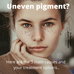 3 causes for uneven pigmentation (skin colour) and what to do about…