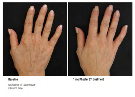 Treatment of aged hands with Profhilo
