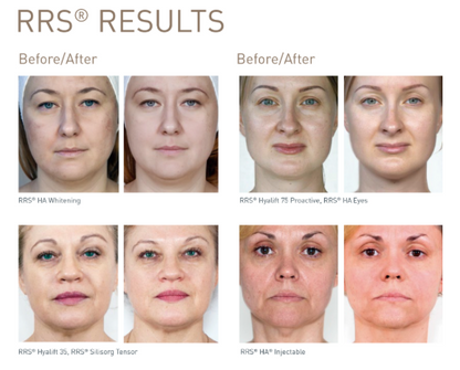 Mesotherapy results at Dr Kim Booysen Aesthetics
