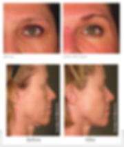 Ultherapy in Bromley and Beckenham by Dr Kim