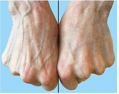 Microneedling treatments to the hands in Bromley and Beckenham