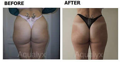 Before and after results of aqualyx