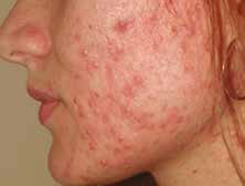 Before and After Pictures of Chemical Peels