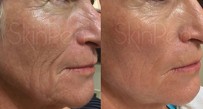 Medical microneeding with SkinPen by Dr Booysen in Beckenham, Bromley, Chislehurst and Petts Wood.