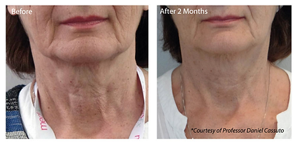Profhilo can be used to tighten and lift the sagging of the neck.