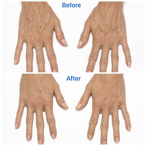 How to determine how much hand dermal filler you need.
