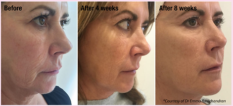 Profhilo Before and After Results