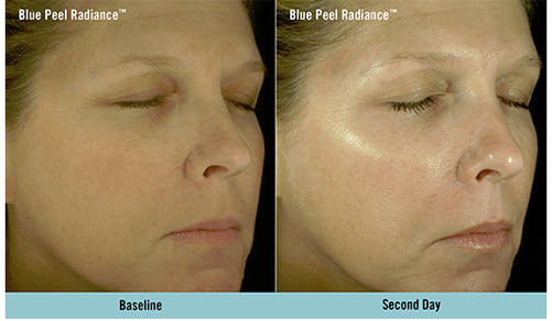 Before and After Chemical Peels in Bromley and Beckenham