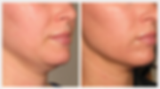 Double chin and Jowl treatment with Ultherapy by Dr Kim in Bromley and Beckenham
