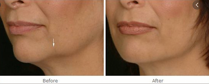 Jowl treatment at Dr KIm Booysen in Beckenham and Bromley.