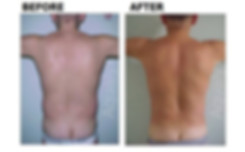 Stubborn fat that wont disappear? Try aqualyx by Dr Kim Booysen