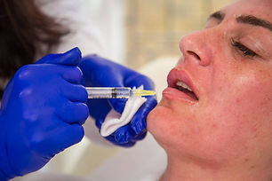 Dr Kim Booysen is the most experienced lip injector in Bromley, Beckenham, Chislehurst, Orpington, Petts Wood, West Wickham, Sidcup, Croydon and New Addington.
