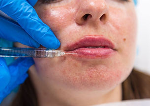 Dr Kim Booysen performs the safes most artisitic lip fillers in the Bromley and Beckenham area. She is a traind medical doctor.