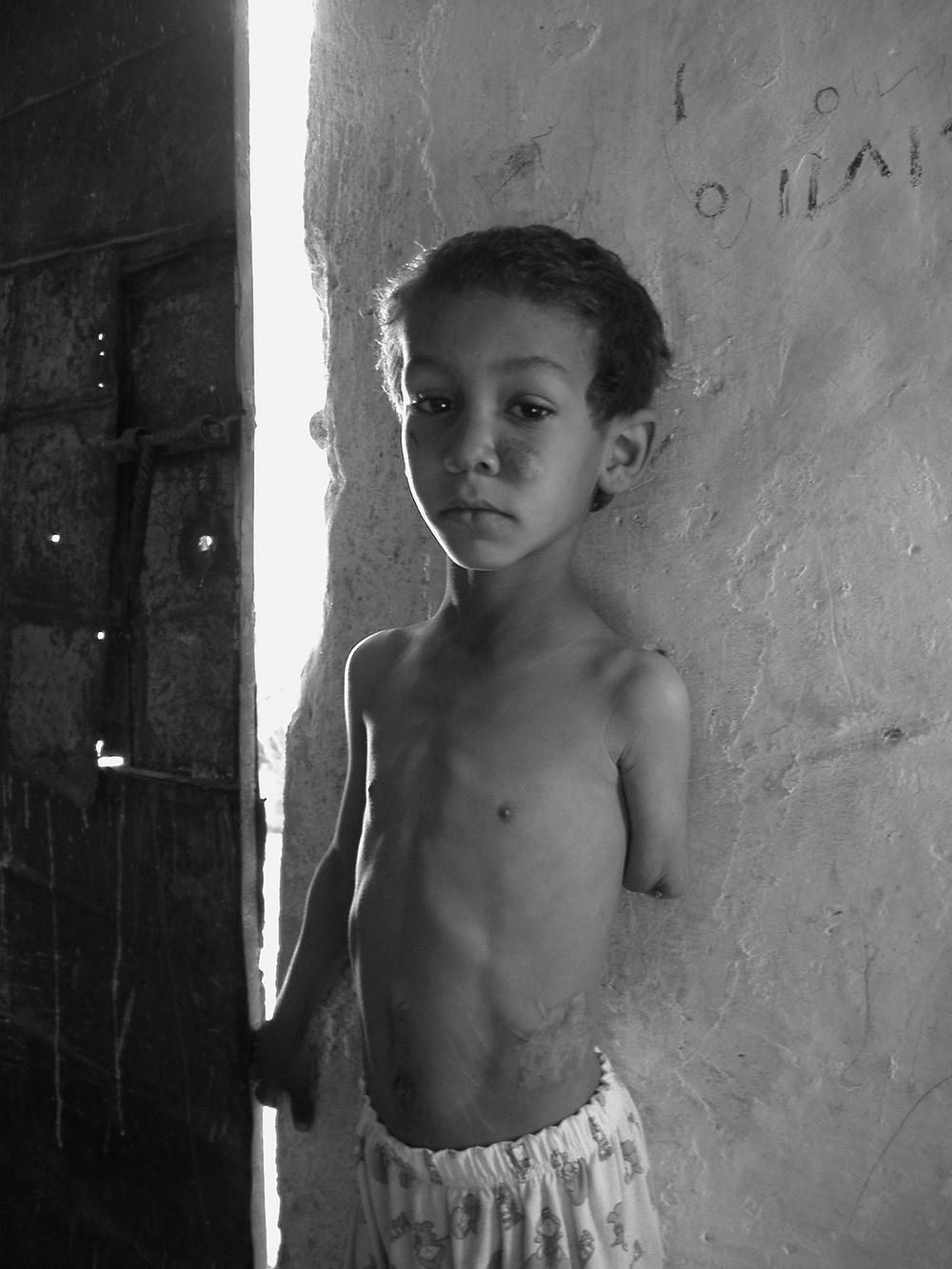 Abdullah Yaqoob, ein Opfer der im Irakkrieg verwendeten Clustermonition