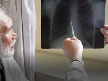 Tuberculose provoca uma em cada três mortes relacionadas à AIDS no mundo