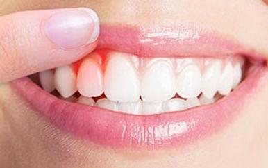 the gum disease treatment in Turkey