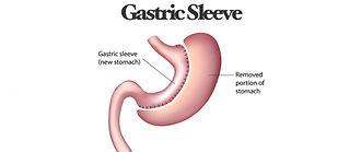gastric-sleeve-1-1024x538_edited.jpg
