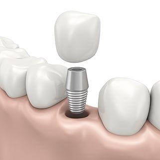 implant-000022515222_Medium_edited.jpg