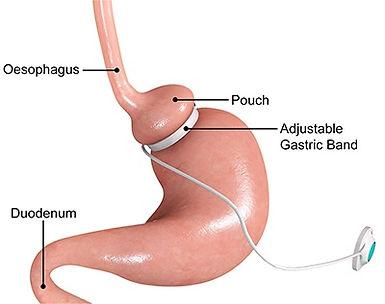 adjustable-gastric-band.jpg