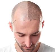 scalp micro pigmentation