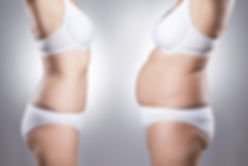 abdominoplasty tummy tuck in Turkey