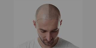 hair%20simulation_edited.jpg